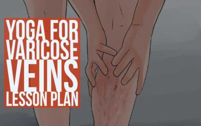 Varicose Veins Yoga Lesson Plan